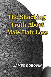 The Shocking Truth About Male Hair Loss: Secrets You Need to Know About Losing Hair So You Can Stop From Going Bald download epub